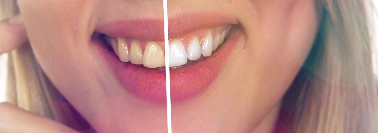 Una manera natural de blanquear los dientes